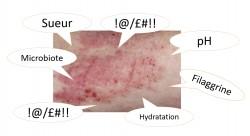 La dermatite atopique, ça fait suer !