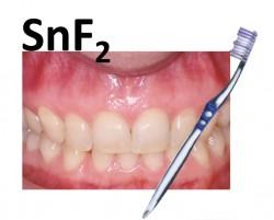 Le fluorure d'étain décroche la timbale en matière de désensibilisation dentinaire !